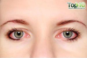 Cách chữa đau mắt đỏ nhanh nhất