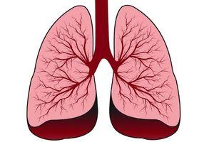 Phát hiện một dạng ung thư phổi mới