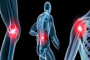 Chữa khỏi đau nhức xương khớp lâu năm bằng bài thuốc từ chân gà