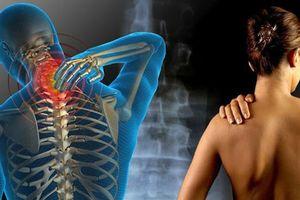 Dấu hiệu đau xơ cơ cực kì nguy hiểm đối với sức khỏe nhưng nhiều người hay phớt lờ