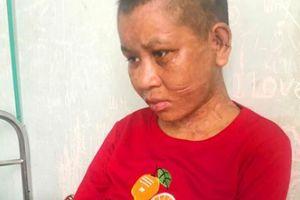 Vụ người phụ nữ bị tra tấn ở Gia Lai: Đối tượng nói bị bỏ thuốc thư?