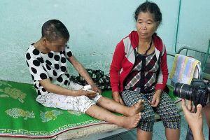 Vụ tra tấn bẻ răng, đốt da, chặt tay người làm thuê tại Gia Lai: Phải khởi tố vụ án