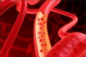 8 thực phẩm tăng cường lưu thông máu, ngăn ngừa đột quỵ