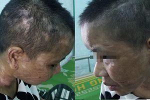 Điều tra vụ cô gái làm thuê nghi bị chủ cắt tai, đập gãy răng và bàn ủi nóng gí vào da thịt