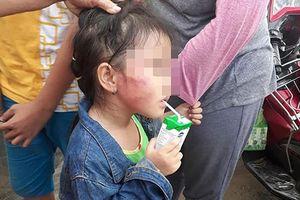 Bình Chánh: Cô giáo đánh trẻ nứt xương hàm