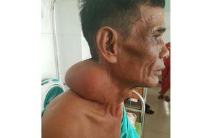 Cắt khối u 3 kg 'đeo' trên cổ bệnh nhân hơn 30 năm