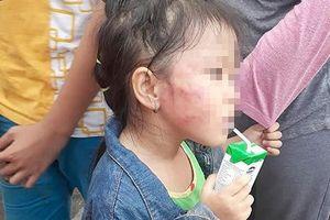 Bảo mẫu tát bé gái 5 tuổi tím mặt ở cơ sở Ánh Sao Vàng bị bắt khẩn cấp