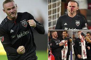 Rooney máu chảy đầm đìa trên mặt, bị gãy mũi phải rời sân đi cấp cứu