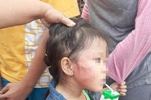 Từ vụ cô giáo đánh trẻ em nứt xương hàm: Cần có chế tài xử phạt nặng hơn