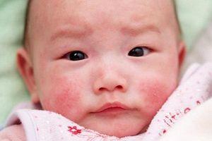 Mẹo đơn giản giúp 'thổi bay' dị ứng thời tiết ở trẻ sơ sinh