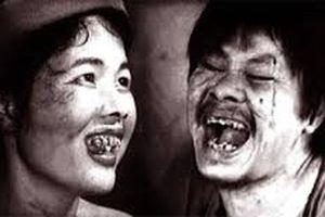 Nghệ sĩ đóng Chí Phèo đột ngột qua đời