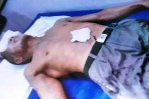 Hai người đàn ông bị đối tượng tạt axit gây bỏng nặng