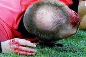 Trọng tài cúp châu Âu bị ném vỡ đầu, máu chảy đầm đìa
