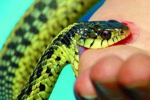 Bé gái 7 tuổi bị phù toàn thân do rắn độc cắn
