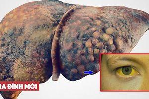 6 dấu hiệu buổi sáng cảnh báo gan của bạn đang nhiễm độc nặng, hãy đi khám ngay