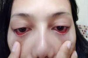 Cô gái 'khóc ròng' vì trụi sạch lông mi sau khi tới thẩm mỹ viện