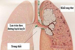 Những dấu hiệu 'tố' bệnh ung thư phổi