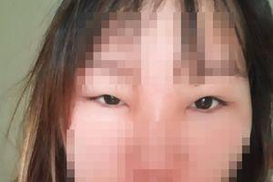 Cô gái 19 tuổi biến dạng mặt vì dùng 'mỹ phẩm dân tộc'