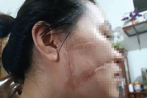 Vụ vợ tố chồng cắt gân, rạch mặt: Người chồng thừa nhận toàn bộ hành vi