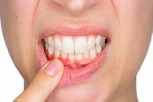 Điều gì xảy ra nếu bạn thường xuyên không đánh răng?