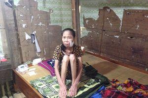 Hà Tĩnh: Hoàn cảnh thương tâm của người phụ nữ bị bệnh lạ đục khoét mặt