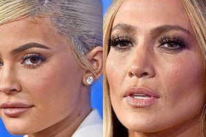 Làn da bóng dầu, mụn chi chít của dàn sao Hollywood tại sự kiện