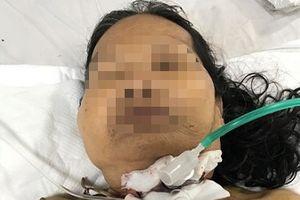 Cứu sống một bệnh nhân bị đứt khí quản