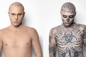 10 ca phẫu thuật biến đổi cơ thể quái đản nhất thế giới