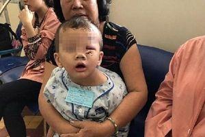 Hai trẻ bị que xiên thức ăn chọc thủng mắt
