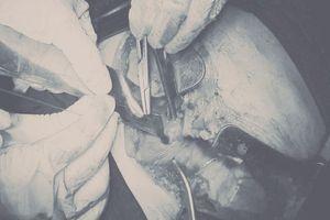 Nam thanh niên bị đâm thấu tim, sốc mất máu nặng được cứu