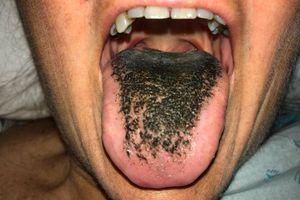 Lý giải hiện tượng lưỡi 'mọc lông đen'