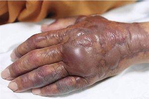 Kinh hoàng: Ăn sushi người đàn ông bị nhiễm sán phải cắt bỏ tay