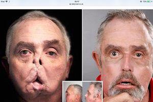 Người bị súng săn bắn vào mặt đã có gương mặt mới sau 7 năm 'xấu xí'