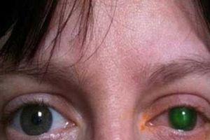 Không tháo kính áp tròng khi bơi, người phụ nữ này phải trả giá bằng con mắt của mình