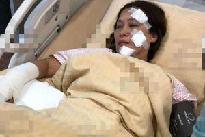 Nữ diễn viên 'Anh hùng xạ điêu' bỏng nặng sau vụ cháy phim trường