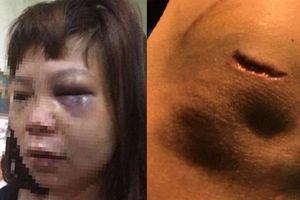 Nữ hộ lý bị chồng cắt gân chân: Do ghen tuông