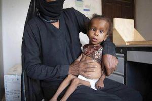 5 triệu trẻ em Yemen có nguy cơ bị đói