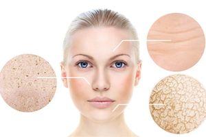 Tại sao da bắt đầu xuất hiện lão hóa ở độ tuổi 30 - Góc nhìn của bác sỹ viện thẩm mỹ D'Vincy