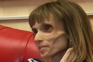 Cô gái 26 tuổi biếng ăn có nguy cơ tử vong vì cân nặng chỉ bằng trẻ lên 4