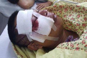 Vụ cư dân Hapulico nghi bị hành hung: Choáng váng, hoang mang