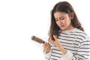 7 lý do phổ biến gây rụng tóc ở thanh thiếu niên