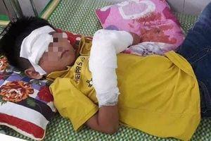Bé trai 7 tuổi bị nát 2 bàn tay do điện thoại phát nổ