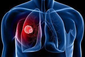 5 bệnh ung thư người Việt Nam mắc phải nhiều nhất hiện nay
