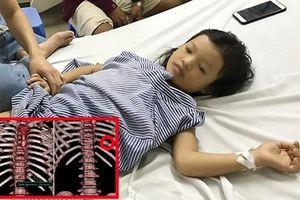 Bé 7 tuổi bị đạn lạc xuyên thấu ngực