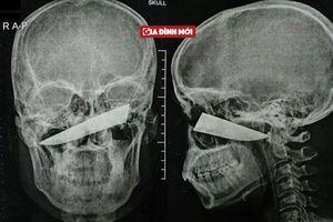 Người đàn ông bị lưỡi dao dài 10cm ghim trong đầu 4 ngày mà không biết