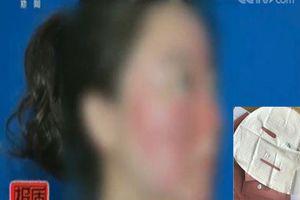 'Hí hửng' dùng mặt nạ giấy được bạn bè giới thiệu là tốt, cô gái khóc mếu vì mặt mũi bỗng chốc sưng vù