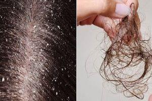 5 nguyên nhân gây rụng tóc và cách khắc phục