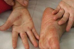 Bé 2 tuổi ở Bến Tre tử vong do bệnh tay chân miệng