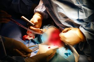 Phẫu thuật kết hợp hai xương cẳng chân cho bệnh nhân không thể truyền máu
