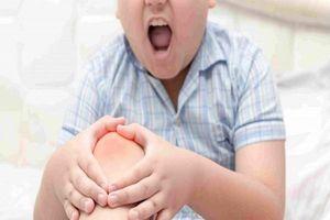 Trẻ bị viêm khớp gối: Nguyên nhân, dấu hiệu và cách điều trị bệnh nhanh chóng